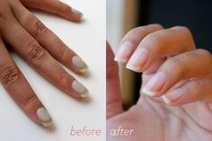 How to whiten polish-stained nails