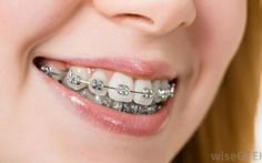 Dental veneers are used to cover the front surface of teeth for cosmetic purpose. Dental veneers are used to change the color, length, shape or size of teeth and are bonded to the visible front surface of teeth. If you want to brighten your smile, then talk to your Edmonton dentist about dental veneers.