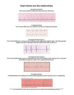 Heart blocks are like relationships