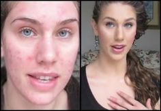 How to Get Rid of Pimple Scars Fast at Home I love her! this lady has videos on youtube. She is a professional model.