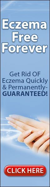 Home Remedy For Eczema