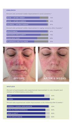 Results speak volumes Unblemish Rodan And Fields, Even Skin Tone, Clinic, Skincare, Skincare Routine, Skins Uk, Skin Care, Asian Skincare