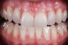 Die Patientin kam mit dem Wunsch zu uns, Ihre durch Knirschen beschädigten, zu kurzen Frontzähne erneuern zu lassen. Durch die Versorgung der Frontzähne und Eckzahnspitzen mit Veneers konnten wir den natürlichen Schneidekantenverlauf wiederherstellen und der Patientin zu einem harmonischen Lächeln verhelfen. Das Einsetzen der Veneers wurde minimalinvasiv vorgenommen, um die Zahnsubstanz zu erhalten und gleichzeitig ein optimales Ergebnis zu erzielen.