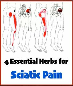 Herbs for sciatica; jamaican dogwood, turmeric, kratom, arnica cream with dmso. Sciatica Pain Relief, Sciatic Pain, Sciatic Nerve, Holistic Remedies, Herbal Remedies, Spinal Stenosis Surgery, Herbal Shop, Endometriosis Symptoms, Health