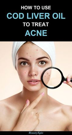 how to use cod liver oil for acne