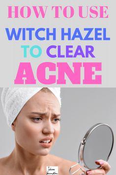 Acne help will hazel witch Witch Hazel