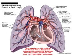 Extensive Pulmonary Emboli in Both Lungs