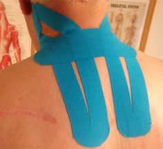 SPORTTAPE kinesiology tape for tension headaches. http://headaches17.info/category/tension-headaches/