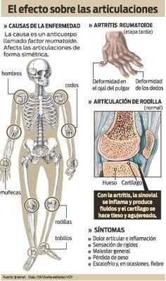 Artritis reumatoide: Efecto sobre las articulaciones #Curso Superior de #Naturopatía y terapias complementarias #salud ► http://curso-naturopatia.es/msite-belleza/index.php?PinCMO