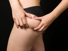 reasons of cellulite and cure