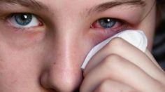 Vous cherchez un remède naturel pour soulager votre conjonctivite ? Il est vrai que les petits maux qui touchent les yeux, sont délicats. Il existe un remède efficace et très naturel