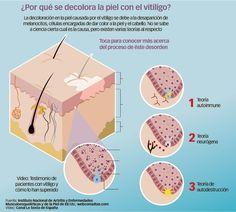 El vitiligo suele afectar directamente al aspecto psicosocial y autoestima  individuo. Al tratarse de un padecimiento que deforma la apariencia, el paciente suele experimentar ira y resentimiento. Cabe mencionar que la enfermedad no es contagiosa y no afecta ningún órgano interno  paciente, lesionando únicamente la piel. Algunos pacientes suelen desarrollar cierta fobia …