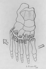 Indications: Met adductus + Ages 2-6 years old <br/> <br/> Procedure:<br/> → 3 dorsal incisions (originally one dorsal transverse incision)<br/>
