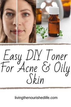 Mar 2020 - DIY toner should be three things: simple, economical, and effective. With only two ingredients, this homemade toner for oily skin/acne is the perfect combo. Diy Toner Face, Natural Face Toner, Skin Toner, Diy Face Scrub, Facial Toner, Face Treatment, Skin Care Treatments, Treatment For Oily Skin, Natural Treatments