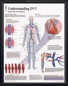 Understanding DVT anatomy poster illustrates formation of a blood clot leading to pulmonary embolism. Cardiovascular chart for doctors and nurses.
