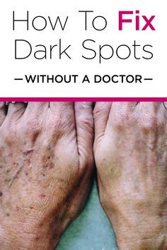 Find Out How To Remove Dark Spots At Home