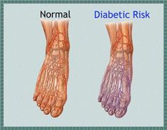 The causes, treatment and natural remedies for neuropathy. Beat Diabetes, Diabetes Facts, Diabetes Recipes, Diabetes Awareness, Gestational Diabetes, Peripheral Neuropathy, Diabetic Neuropathy, Books, Natural Remedies