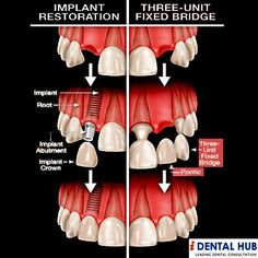 Implants Or Bridge? Which one is better? #oralhealth #dentalcare #dentist