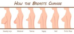 How #Breasts change with age.