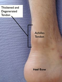 Noninsertional Achilles Tendinitis    In noninsertional Achilles tendinitis, fibers in the middle portion of the tendon have begun to break down with tiny tears (degenerate), swell, and thicken.    Tendinitis of the middle portion of the tendon more commonly affects younger, active people.