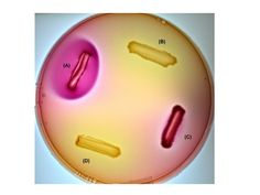 MacConkey Agar (Mac) - Ingredients: crystal violet, bile salts, neutral red, lactose -Differential: identify and isolate lactose fermenting G-  Enterobacteriaceae. -Selective: crystal violet and bile salts. -Results: (A): E. coli: strong lactose fermentation  bright pink halo (bile ppt) and pink growth. (B): Salmonella arizonae:  growth but no fermentation. (C): Enterobacter aerogenes: ferments lactose, colonies are pink. (D) Proteus vulgaris:  growth but noo fermention.