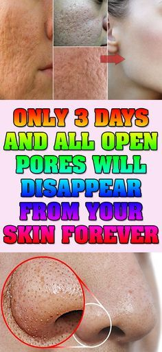 ONLY 3 DAYS AND ALL OPEN PORES WILL DISAPPEAR FROM YOUR SKIN FOREVER