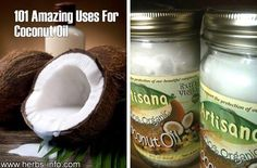 100 Amazing Health Benefits Of Coconut Oil{ Ah, coconut oil, Quite a lot of uses for this extremely versatile product..#coconut_oil, #diy