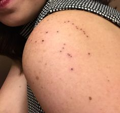 Orion constellation tattoo. Dad and I used to star gaze when I was little and this was my favorite to look for. Got it in his honor. Wanted it to be simple and subtle. Looks like freckles. ;) -Lisa