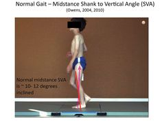 Tuning of ankle foot orthoses (AFOs) and AFO-footwear combinations can significantly improve gait in patients with neuromuscular impairments. Pediatrics, Google Search