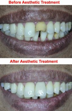 Before & after aesthetic treatment
