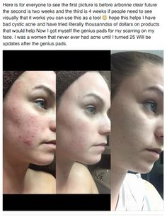 Love another testimony of the Arbonne Clear Future line! http://www.arbonne.com/pws/cerissapatterson/tabs/home.aspx  Here is my direct link to shop