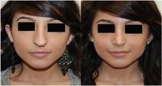 If you are looking to rejuvenate your facial contour by #skin fairness treatment then book your appointment with us.