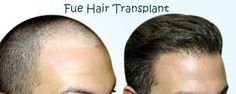 Find the best advanced Bio-FUE hair transplant clinic at Delhi. To get the head full of hair is only possible with FUE hair transplant surgery. Book an appointment now & get discount offers on all procedures of hair restoration methods. Facial Hair Transplant, Hair Transplant In India, Hair Transplant Cost, Hair Transplant Surgery, Anti Aging, Global Hair, Hair Specialist, Going Bald, Hair Loss Treatment