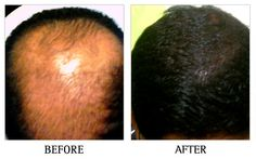 Hair fall can occur due to a host of reasons. At Hairline International Hair & Skin Clinic, we identify the root cause of the problem leading to hair fall.