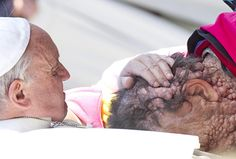 Pope Francis embraced the man afflicted with neurofibromatosis, a genetic disorder that causes pain and the formation of thousands of tumors on the body