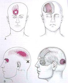 Occipitalis & Frontalis Trigger Point Diagram
