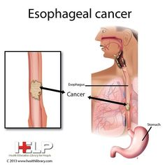 Esophageal cancer has increased over 600% in the past decades, is one of our nation's fastest growing cancers and it is also one of the deadliest. Visit our website to learn more: www.salgi.org