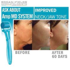 Before and after rodan and fields... Redefine regimen with AMP MD erinodonnell.myrandf.com