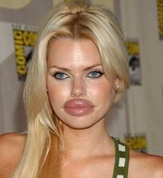 duck face lips frozen in botox Bad Plastic Surgeries, Plastic Surgery Gone Wrong, Plastic Surgery Fails, Operation, Big Lips, Fake Lips, Duck Face, Crazy Girls, Crazy People