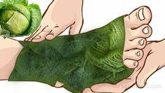 Remedio casero con col para la gota. Esta es la razón por la que debes envolver tus pies con hojas de col. La col o repollo proviene de la familia de las crucíferas, ésta se utiliza