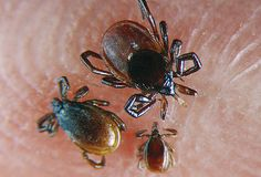3 Black-legged, or deer ticks, on human skin