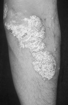 Before Psoriasis treatment at Crutchfield Dermatology