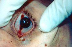 Post mortem changes - tache noir (drying of the cornea)