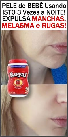 Face, Face Wrinkles, Beauty Hacks, Healthy Skin, How To Knit, Health, Bonito, Pictures, Trendy Tree