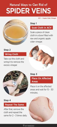 Apple Cider Vinegar Remedies for Spider Veins