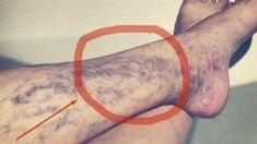 Jestto bardzo nieprzyjemne i nieestetycznezjawisko występujące pod skórą, zwykle przybierają kolor niebieski, fioletowy lub czerwony.Mimo że nie wpływają bezpośrednio na zdrowie naszego organizmuwarto wypróbować poniższe metody, aby się ich pozbyć. Istnieją 2 bardzo łatwe i naturalne