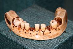 DENTAL MUSEUM: Washington's ivory teeth