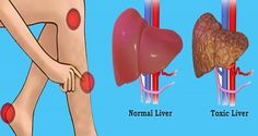 The liver is one of the most hard-working organs in your body since it performs many vital functions, including filtering the blood, detoxifying harmful substances, and metabolizing nutrients. However, when fat begins to accumulate in the liver, it can fail to eliminate the toxins from your body, which is commonly caused by a poor diet. SIGNS YOUR LIVER IS FULL OF TOXINS This can lead to inflammation, scarring of the liver, as well as permanent liver damage. There are several warning…