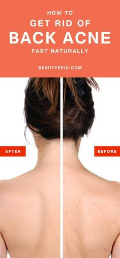 want to know how to get rid of back acne? Here are wonderful remedies that can be treat at home.