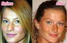 Giselle before and after nose job. Visit us at http://www.drgregpark.com/nose-surgery for more information about rhinoplasty surgery